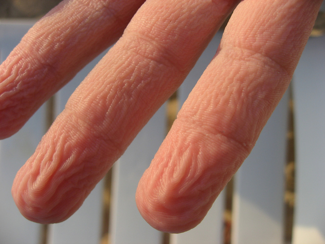 Knowledgewisdom93: Why do our fingers wrinkle when wet?